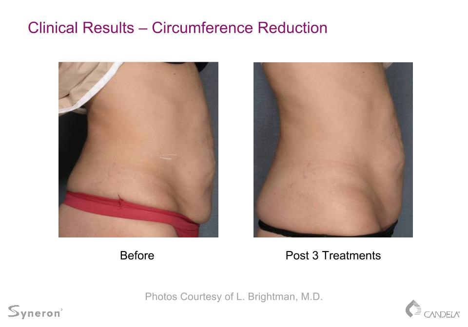 Body Shaping And Cellulite Reduction In Rochester Ny